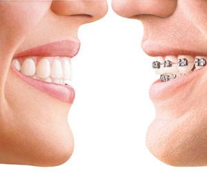 Invisalign Costa Rica Braces 300x250 - Papel do ortodontista em sua saúde oral