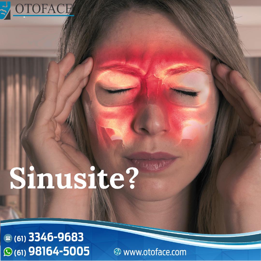18CE69E7 FC66 41AA 9F16 03E8CC62CBAB - Sinusite, causas e sintomas